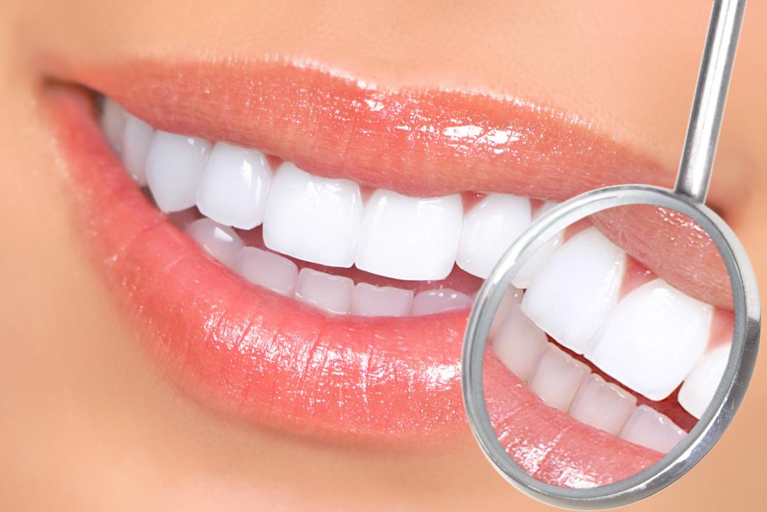 הלבנת שיניים, ד'ר אילנית לופו מרפאת שיניים בכפר סבא