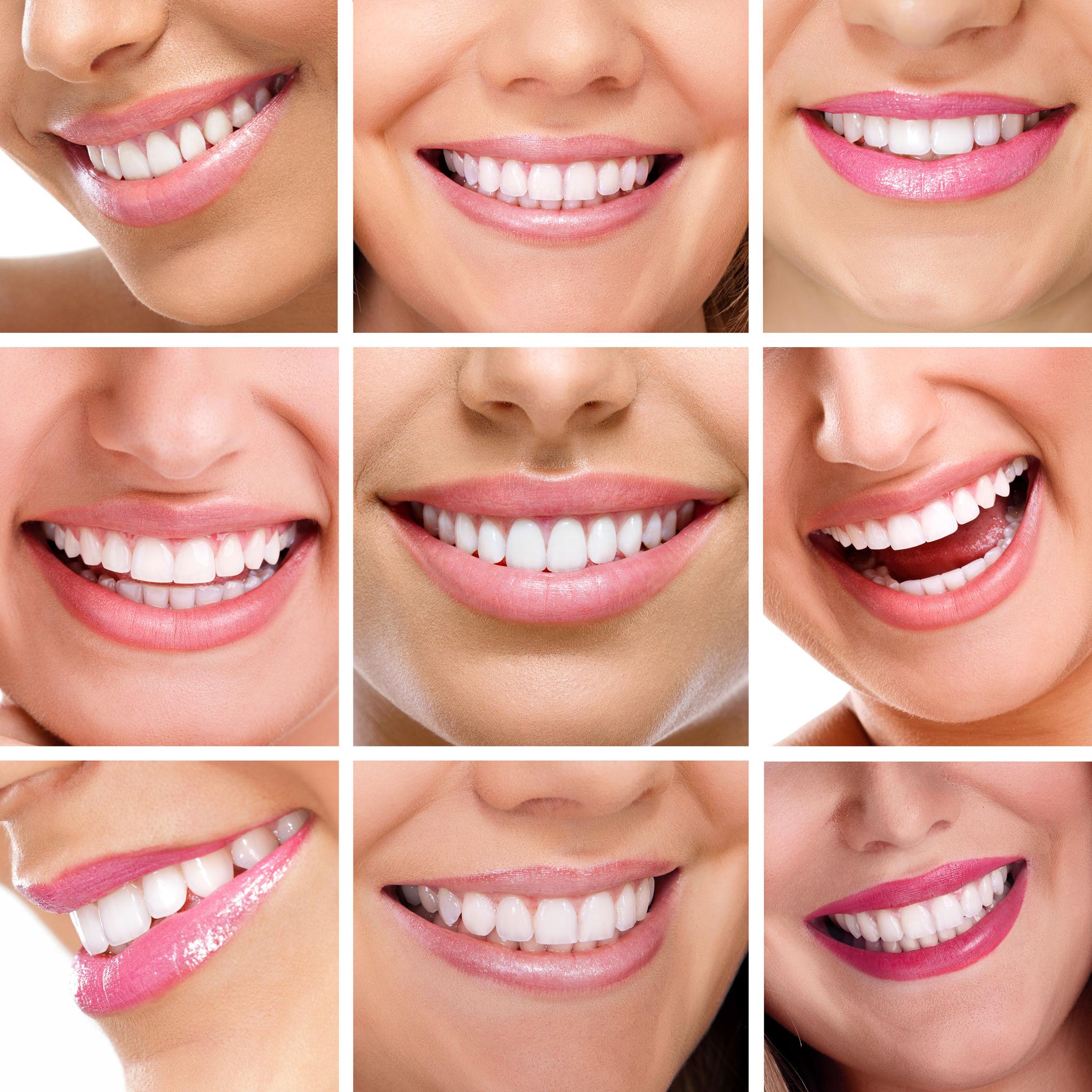 מי מטפל בשיניים שלך - ד''ר אילנית לופו