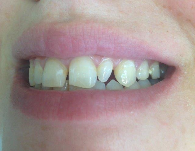 לפני טיפול במרפאת שיניים של ד