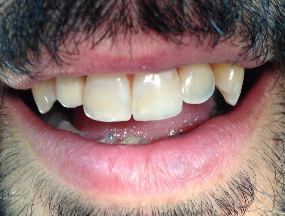 אחרי טיפול במרפאת שיניים של ד